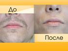 Увидеть изображение  Удаление волос БЕЗ БОЛИ навсегда 33748666 в Дмитрове
