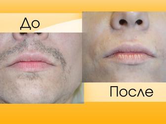 Скачать бесплатно фото  Удаление волос БЕЗ БОЛИ навсегда 33748666 в Дмитрове