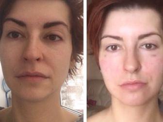 Скачать бесплатно foto Разное Услуги косметолога 37851871 в Москве