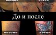 Выведение и перекрытие некачественных татуировок