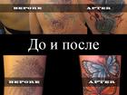Фото в Красота и здоровье Косметические услуги Выведение и перекрытие некачественных татуировок в Москве 3000
