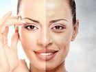 Уникальное фотографию  Центр косметологии и эстетики Красота и здоровье 37212712 в Москве