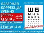 Уникальное изображение  Лазерная коррекция зрения 38680678 в Ульяновске