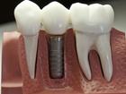 Новое изображение  Стоматология, имплантация зубов на Столетии, Акция ! 61190396 в Владивостоке